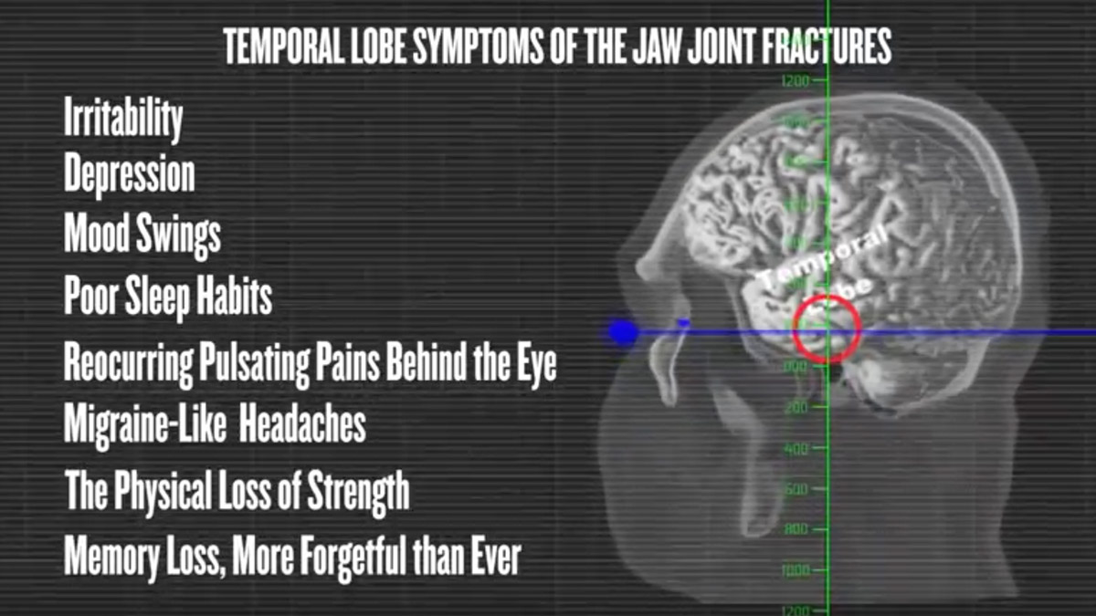 Who is The Jaw Joint Science Institute? Diagnosing Jaw Joint (TMJ) Fracture Patterns of Concussions.